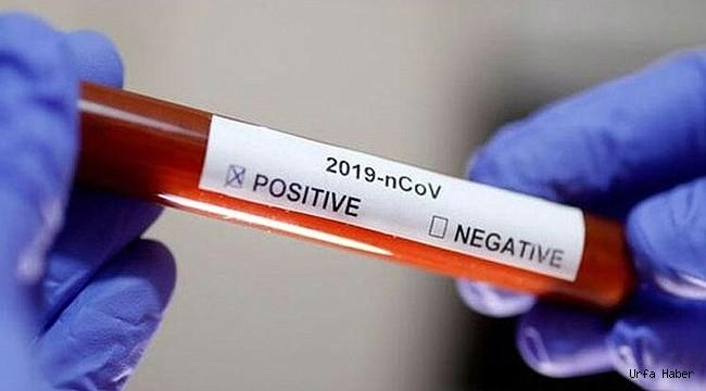 Urfa'da AVM ve Üniversite'de 2 kişi de virüs testi pozitif çıktı