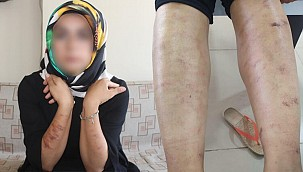 Bir güzellik merkezi skandalı daha! Genç kadının vücudu yandı…