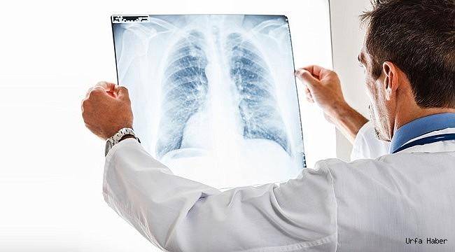 E-Sigara Covıd Riskini 5 Kat Artırıyor!
